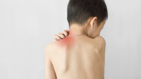 Itching problem in children